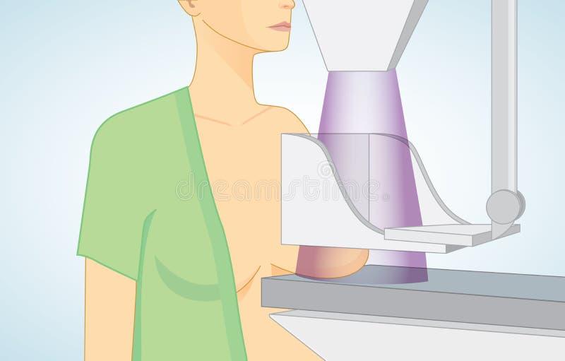 Женщина получает маммограммы для скрининга рака молочной железы бесплатная иллюстрация