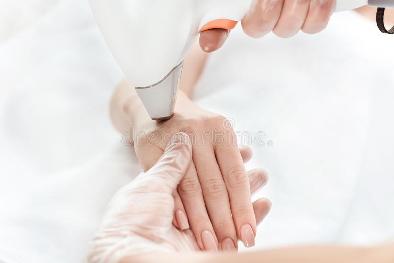 Женщина получая заботу кожи лазера в наличии стоковое изображение