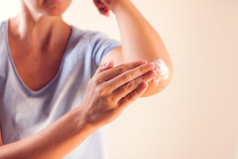 Женщина прикладывает сливк на сухом локте Концепция людей, здравоохранения и медицины стоковое фото rf