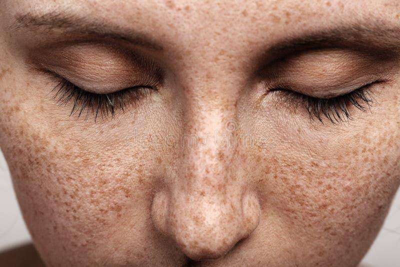 Женщина с веснушками стоковое фото rf
