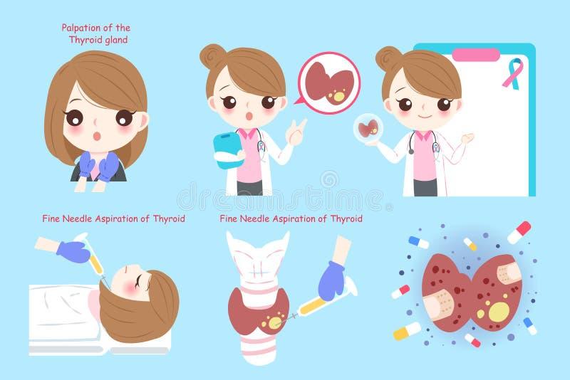Женщина с раком щитовидной железы иллюстрация штока