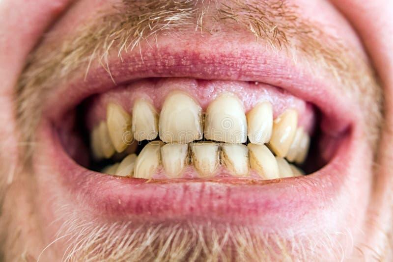 Не чистые зубы картинки