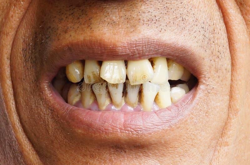 Желтые зубы стоковые изображения