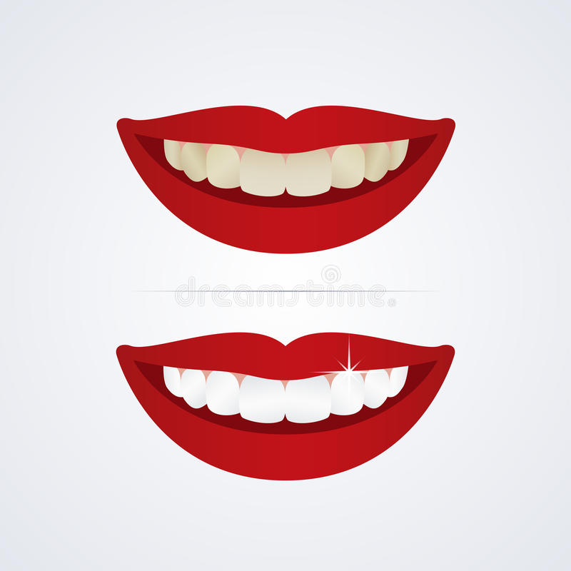 Забеливать иллюстрацию зубов иллюстрация штока