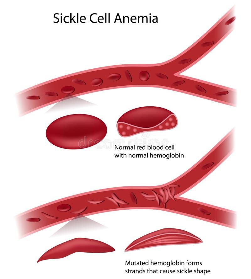 Заболевание клетки серпа иллюстрация вектора