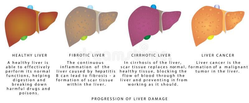Заболевание печени стоковые изображения rf
