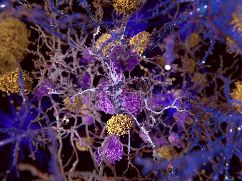 Заболевание Alzheimer, нейрон будучи phagocyted клетками микроглии иллюстрация штока