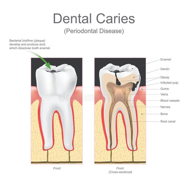 Заболевание зубоврачебной костоеды периодонтальное иллюстрация вектора