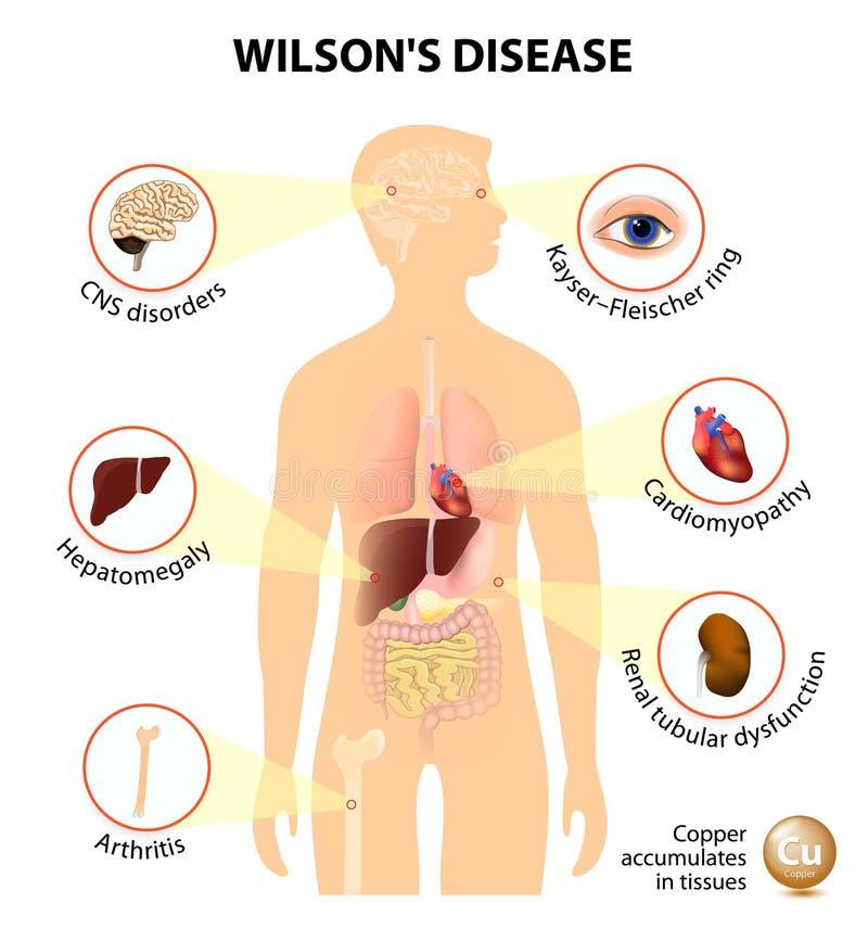 Заболевание Уилсона иллюстрация вектора