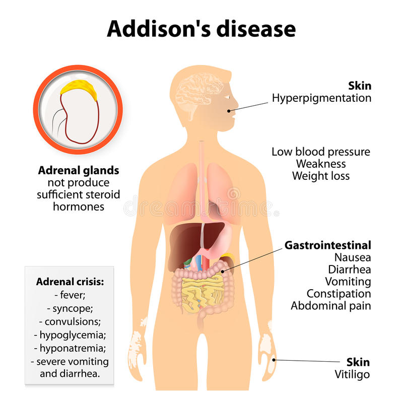 Заболевание Addison иллюстрация штока