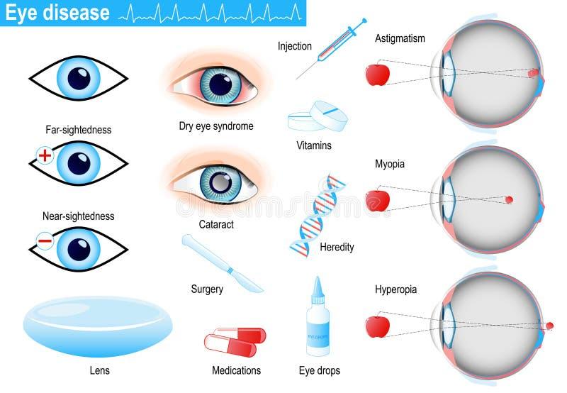 Заболевания и разлады человеческого глаза Infographic иллюстрация вектора