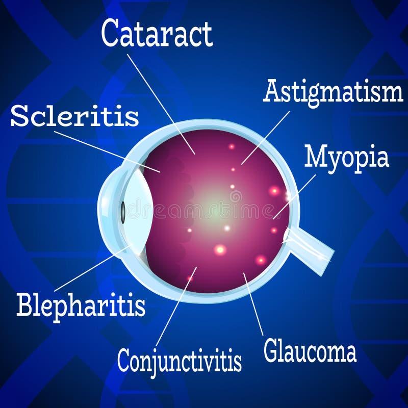 Заболевания человеческого глаза 2 иллюстрация вектора