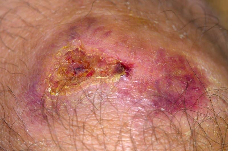Заживление рана стоковое изображение