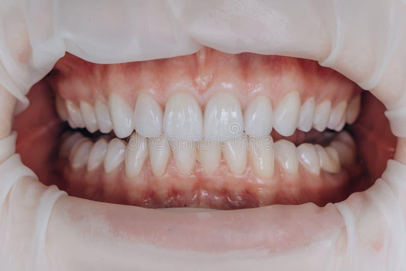 Законченные керамические передние кроны 8 облицовок блоков зубоврачебных стоковые изображения
