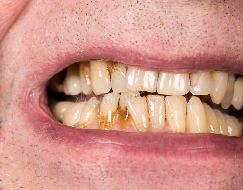Закройте вверх рта с коричневыми пятнами металлической пластинкы стоковая фотография
