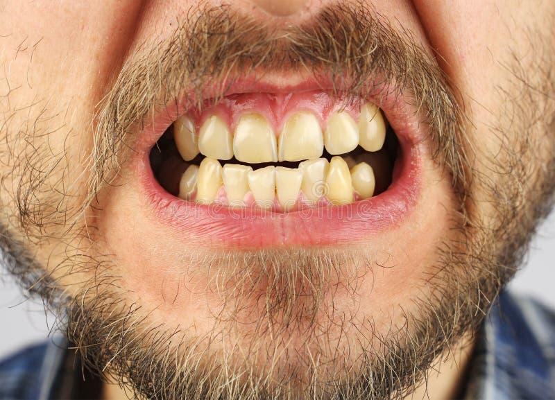 Закрытые человеческие зубы grin, малый зазор, крупный план стоковые фотографии rf