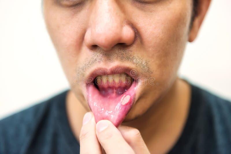 Замученный рот гнойника aphtha от аварии стоковая фотография
