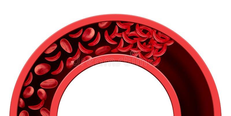 Засорение кровеносного сосуда серповидного эритроцита бесплатная иллюстрация