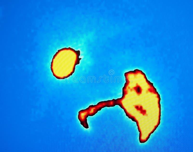 Затруднение желчного пузыря, ядерная медицина стоковые изображения rf