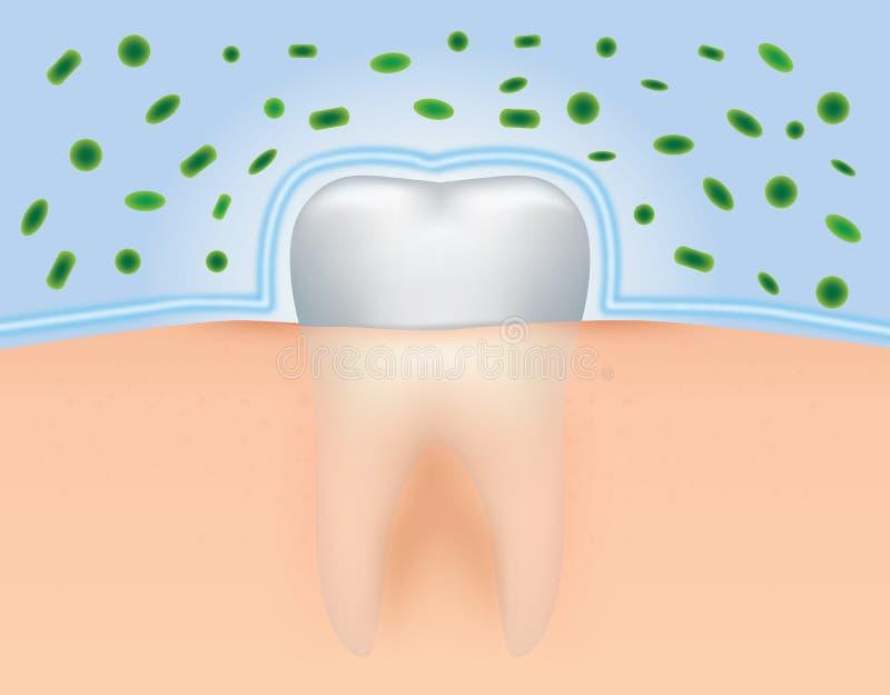 Защитите зубы от бактерий бесплатная иллюстрация