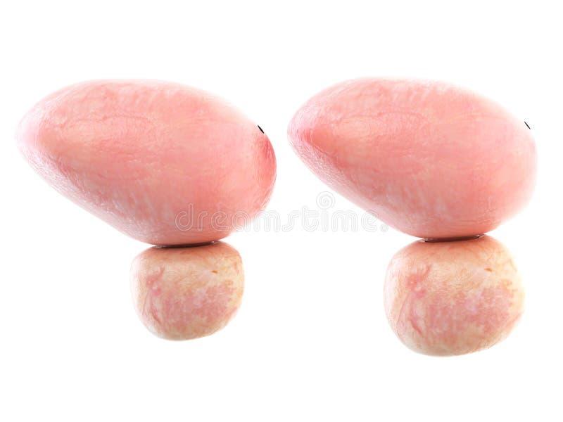 Здоровая и увеличенная простата бесплатная иллюстрация