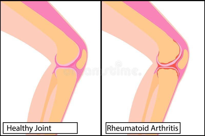 Здоровое соединение колена и иллюстрация вектора ревматоидного артрита медицинская бесплатная иллюстрация