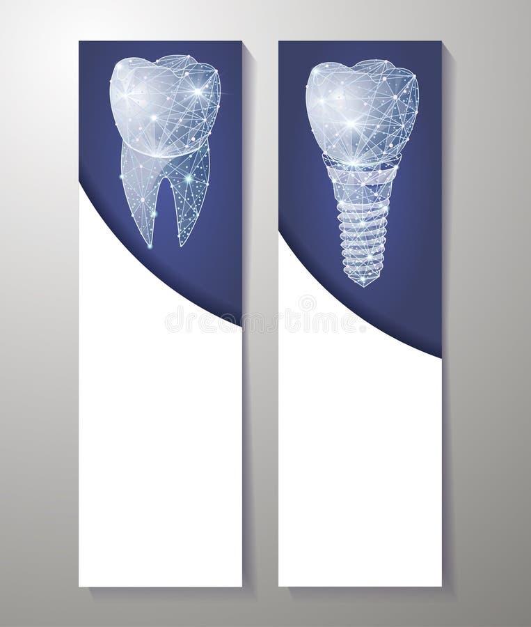 Здоровые зубы и зубной имплантат Дизайн знамен Смогите использовать для маркетинга иллюстрация штока
