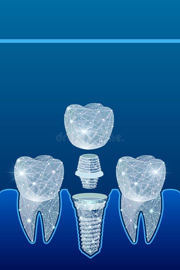 Здоровые зубы и зубной имплантат зубоврачевание Вживление человеческих зубов иллюстрация бесплатная иллюстрация
