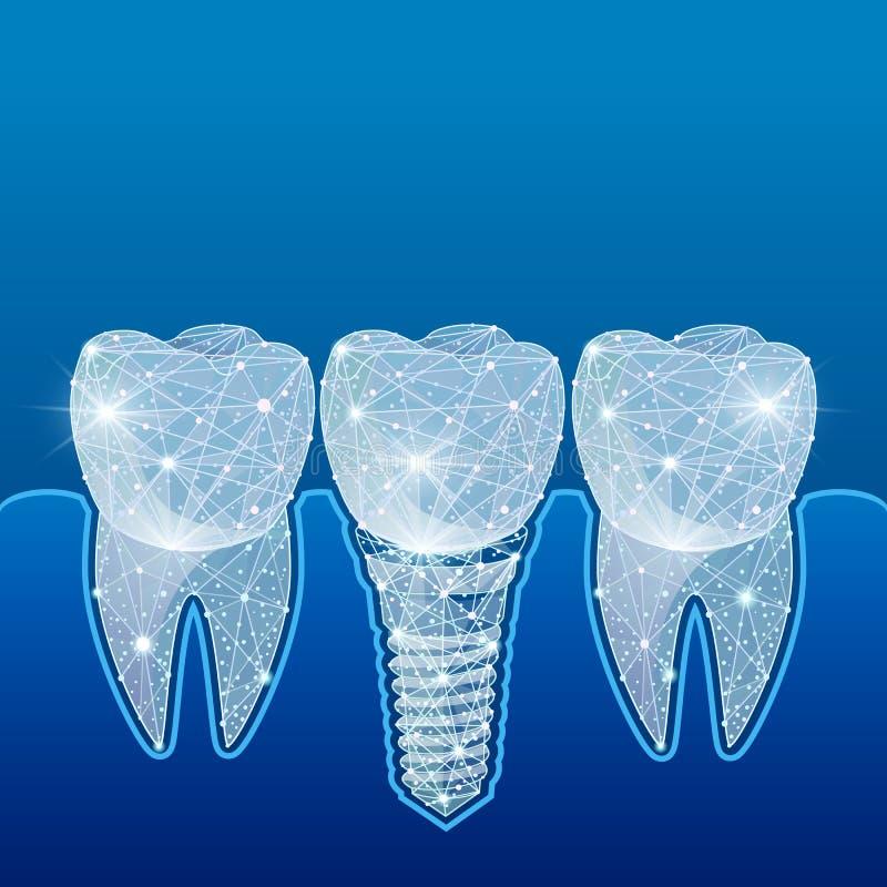 Здоровые зубы и зубной имплантат зубоврачевание Вживление человеческих зубов иллюстрация иллюстрация штока