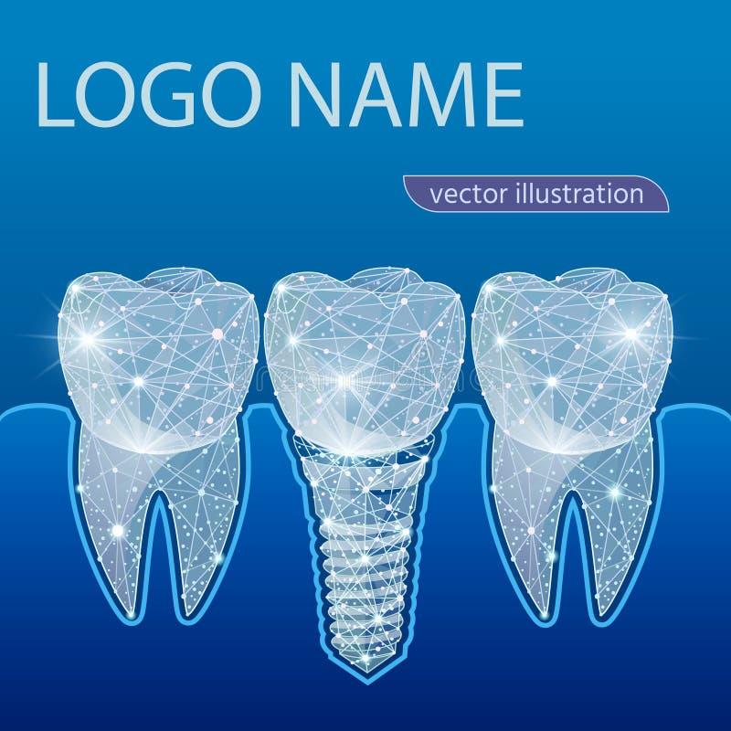 Здоровые зубы и зубной имплантат зубоврачевание  также вектор иллюстрации притяжки corel иллюстрация вектора