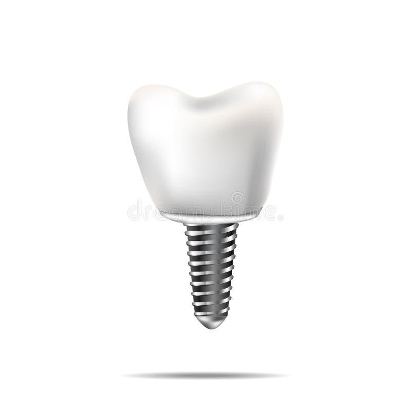 Здоровые зубы и зубной имплантат Реалистическая иллюстрация зубоврачевания зуба медицинского бесплатная иллюстрация