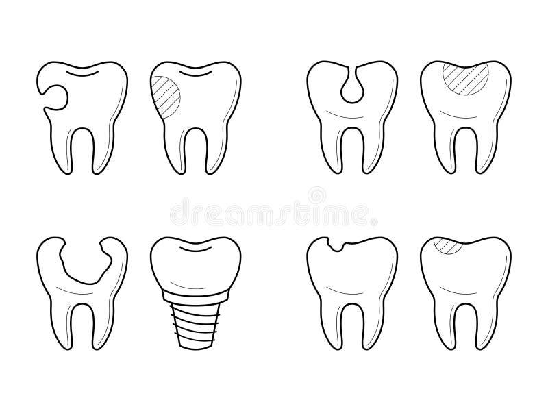 Значки обработки зуба, реконструкции иллюстрация вектора