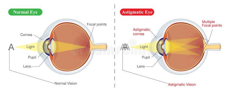 Зрение нормальных глаза и Astigmatic бесплатная иллюстрация
