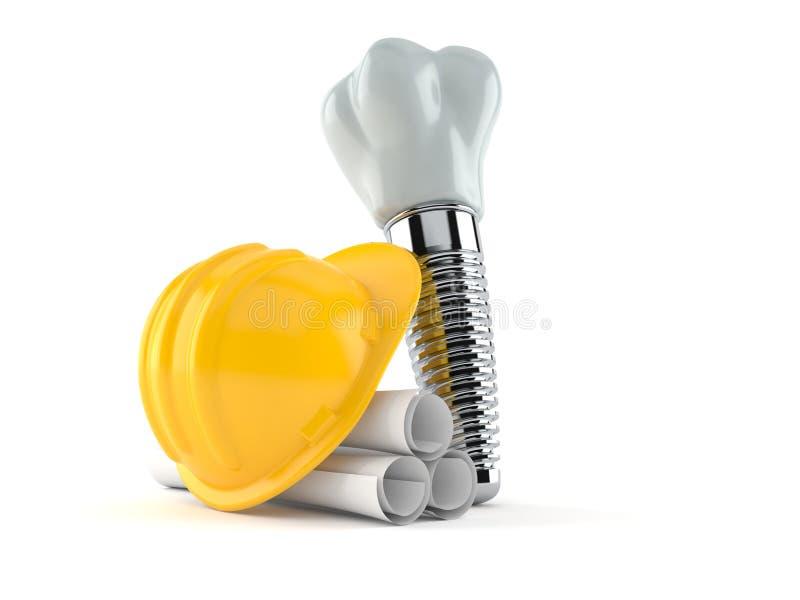 Зубной имплантат со светокопиями иллюстрация вектора