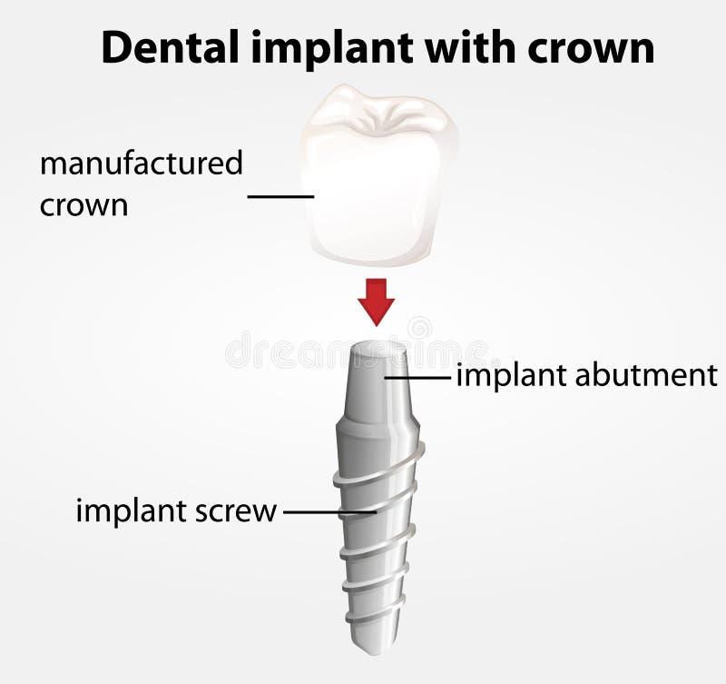 Зубной имплантат с кроной бесплатная иллюстрация