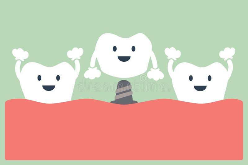 Зубной имплантат с кроной иллюстрация штока