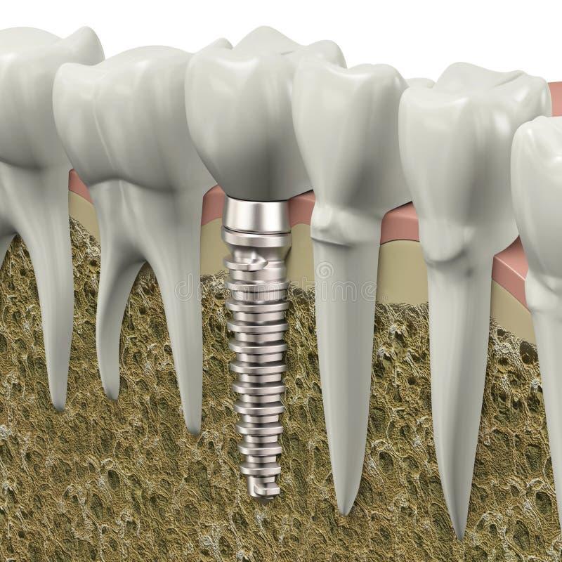 Зубной имплантат бесплатная иллюстрация