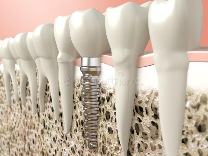 Зубной имплантат иллюстрация вектора
