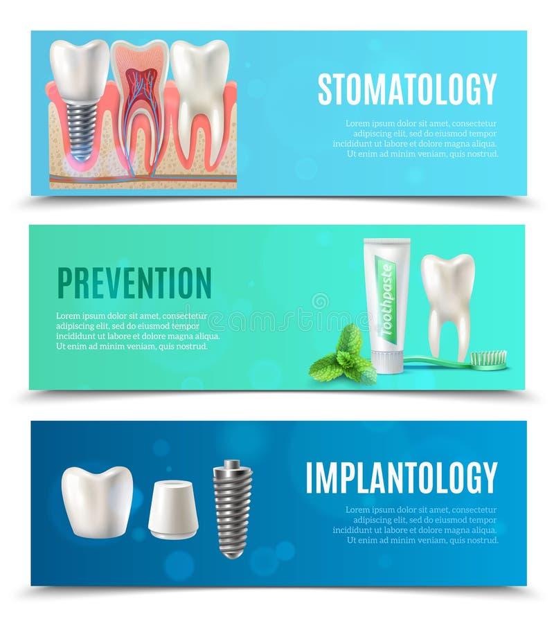 Зубные имплантаты 3 горизонтальных установленного знамени иллюстрация штока