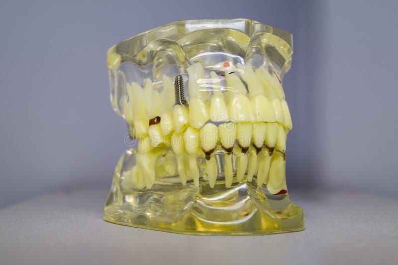 Зубные имплантаты и зубы в черепе стоковое фото rf