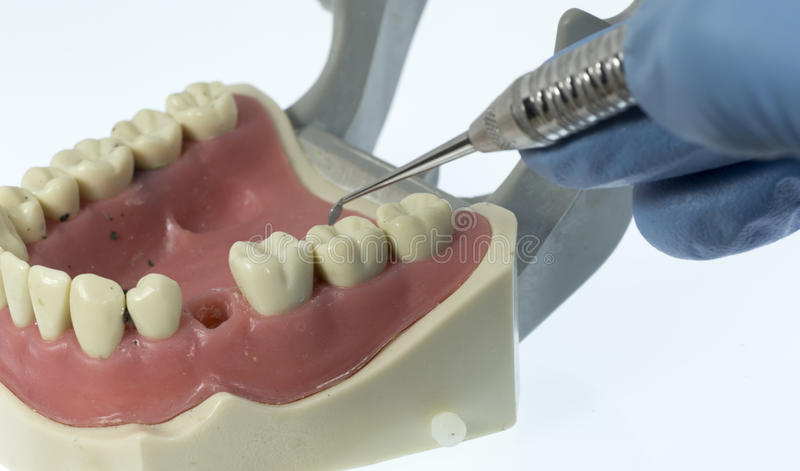 Зубоврачебная завалка стоковое фото