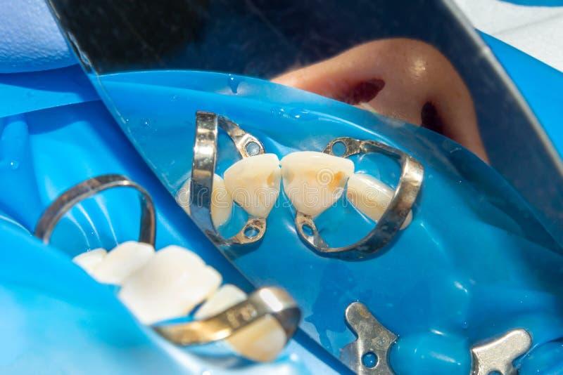Зубоврачебная костоеда Заполнять с зубоврачебным составным материалом photopolymer используя rabbders Концепция зубоврачебной обр стоковое изображение