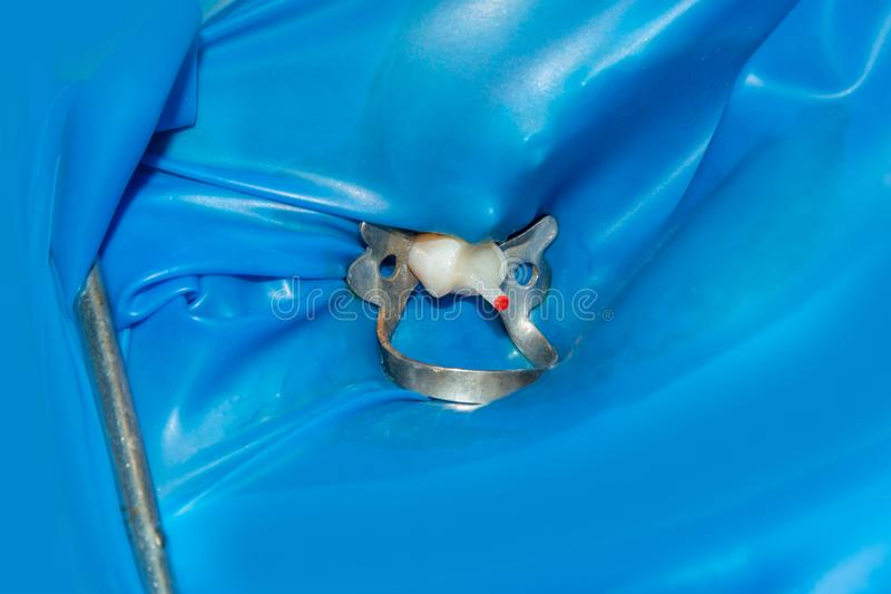 Зубоврачебная костоеда Заполнять с зубоврачебным составным материалом photopolymer используя rabbders Концепция зубоврачебной обр стоковое фото