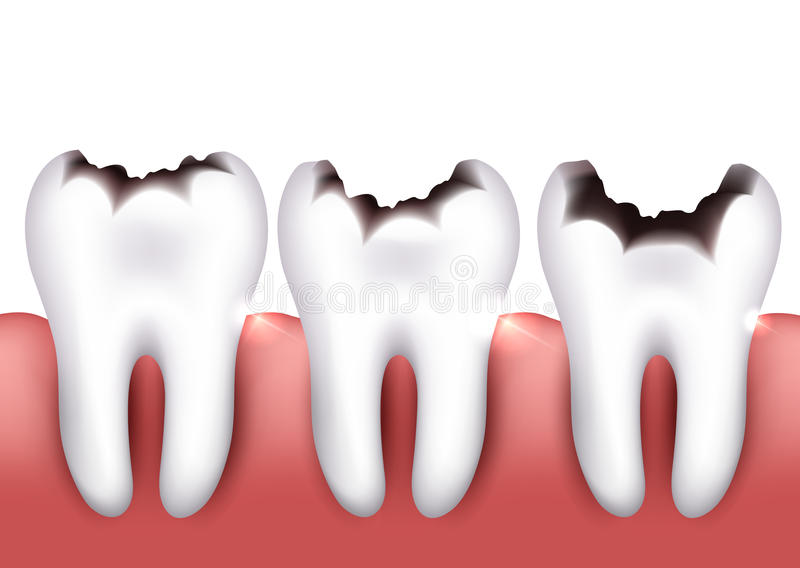 Зубоврачебная костоеда бесплатная иллюстрация