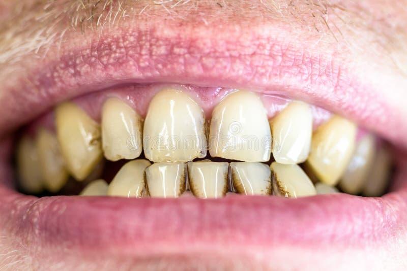 Зубоврачебная металлическая пластинка на желтых зубах стоковые изображения