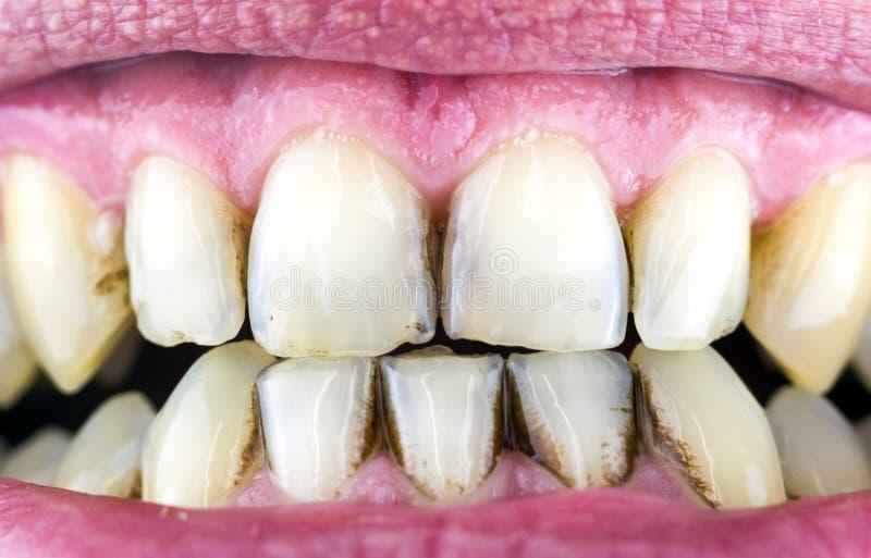 Зубоврачебная металлическая пластинка на зубах стоковые фото