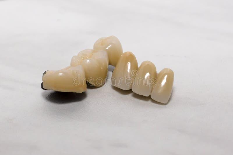 Зубоврачебная минералометаллокерамика крон стоковая фотография rf