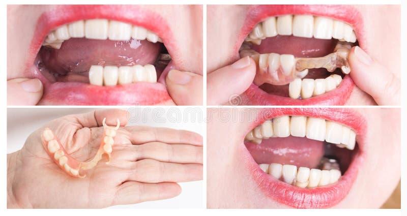 Зубоврачебная реабилитация с верхним и более низким протезом, перед и после обработкой стоковое фото rf