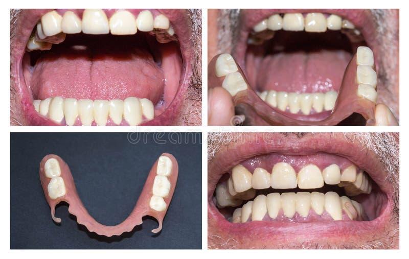 Зубоврачебная реабилитация с верхним и более низким протезом, перед и после обработкой стоковая фотография rf