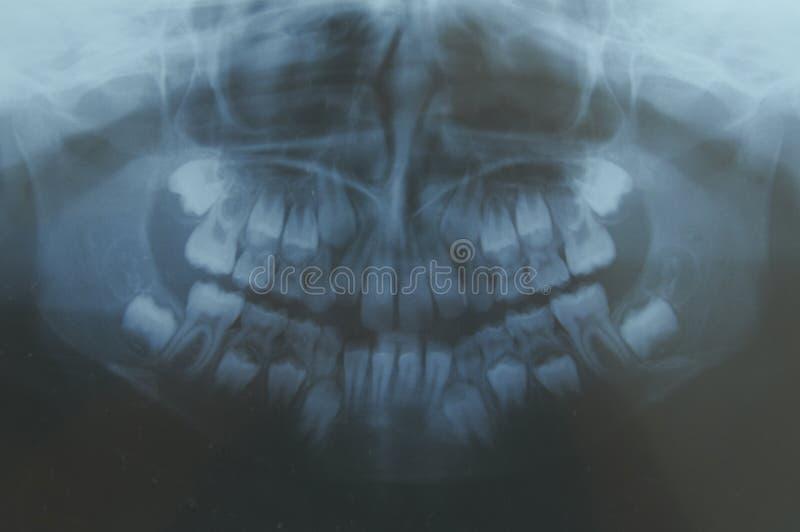 Зубоврачебно стоковое фото